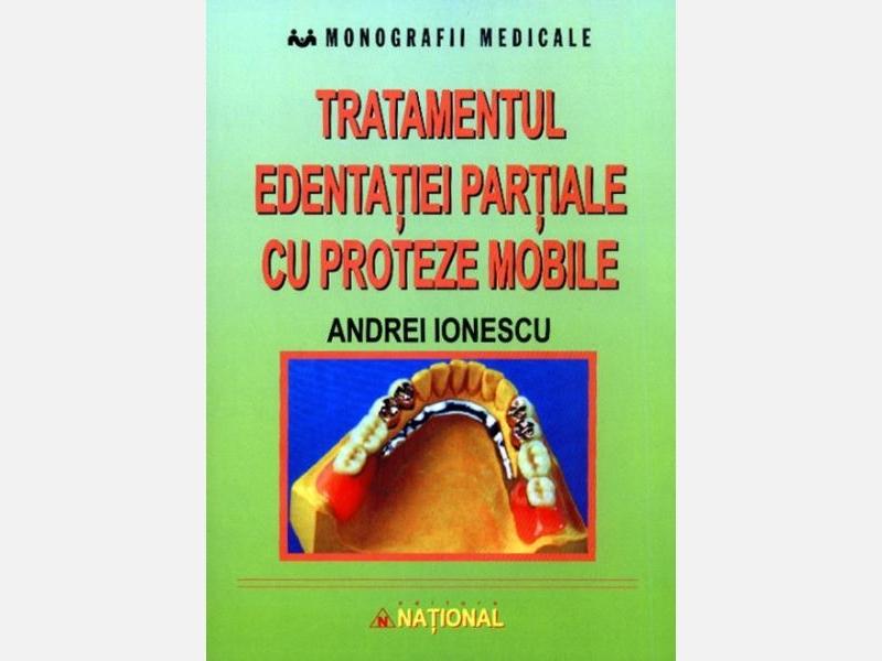 Tratamentul-edentatiei-partiale-cu-proteze-mobile.jpg